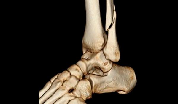 Minimally invasive fracture surgeon Advanced Ct Imaging   Foot & Ankle Surgeon Miami