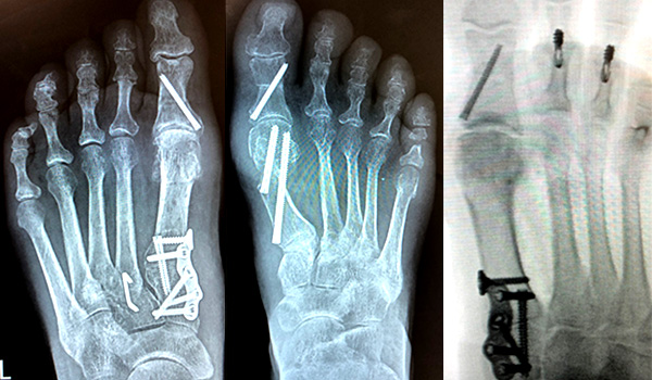 bunions and hammer toe doctor in miami   Foot & Ankle Surgeon Miami