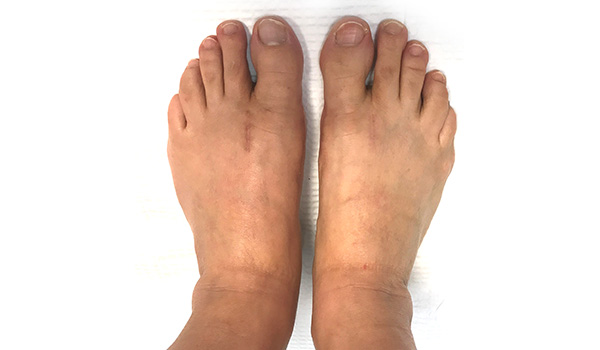 bunions and hammer toe doctor miami   Foot & Ankle Surgeon Miami