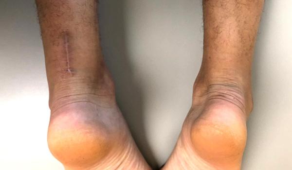 Achilles rupture surgeon in miami | Foot & Ankle Surgeon Miami