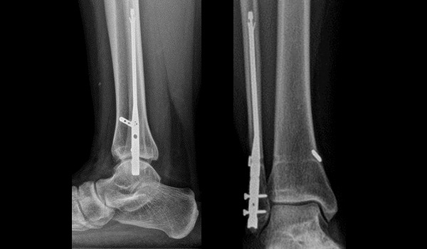 Foot fracture doctor in coral gables florida   Foot & Ankle Surgeon Miami