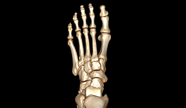 Miami Minimally Invasive Foot and Ankle Surgeon | Foot & Ankle Surgeon Miami
