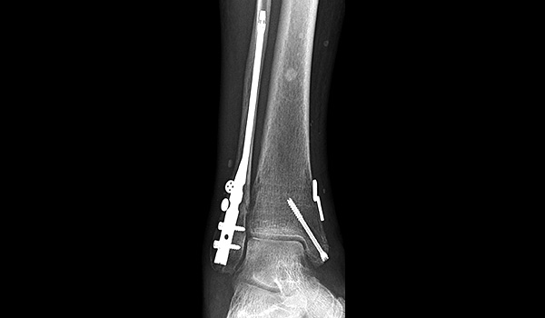 surgical fracture doctor miami   Foot & Ankle Surgeon Miami